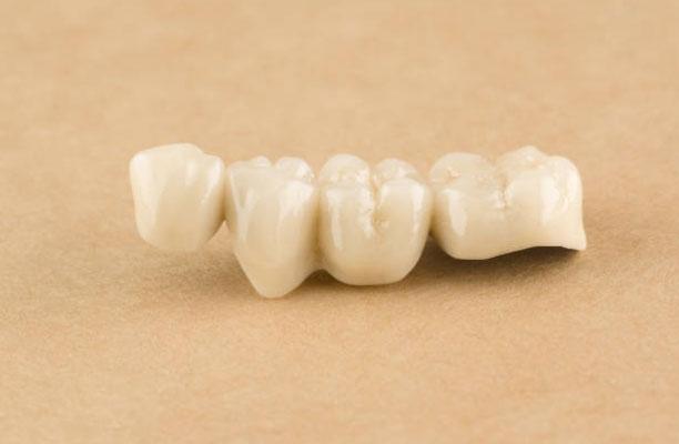 Dental Crowns and Bridges in Richton Park, IL - Sauk Trail Dental Care