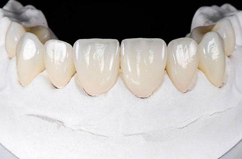 Dental Veneers in Richton Park, IL - Sauk Trail Dental Care