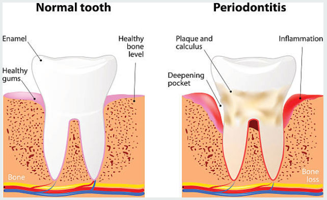 Deep Cleanings in Richton Park, IL - Sauk Trail Dental Care